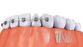 teeth and implant