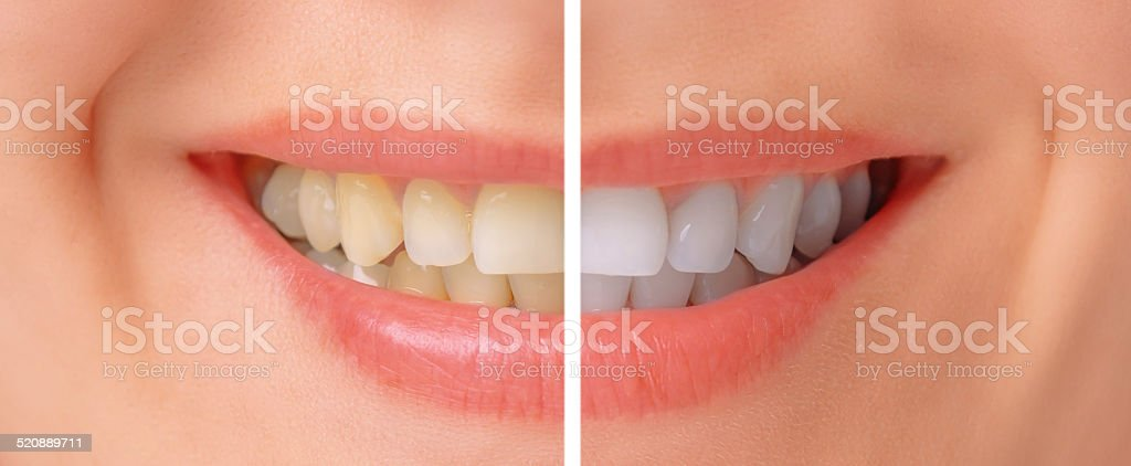 Teeth before and after whitening stock photo