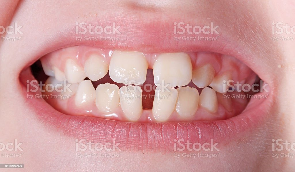 Teeth before braces stock photo