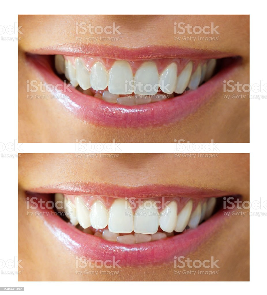Teeth bleaching stock photo