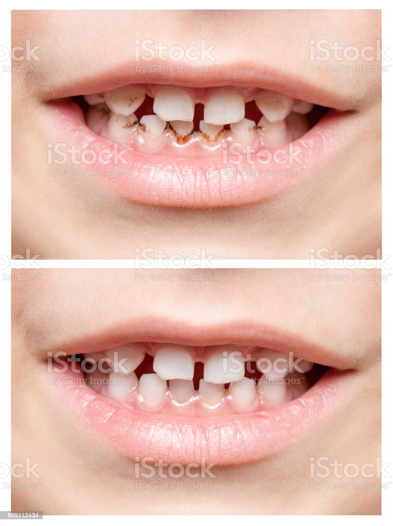 Teeth. Children's mouth. Photo closeup. Collage stock photo