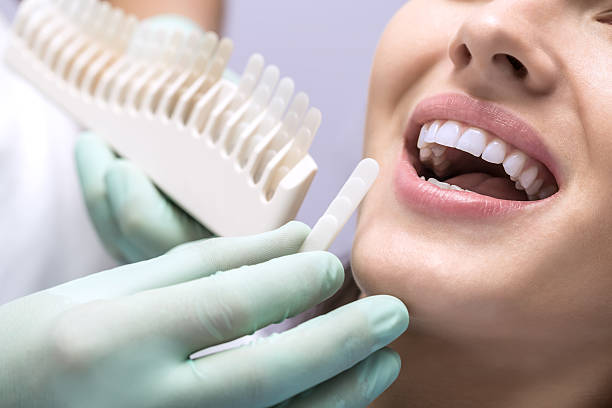Teeth Whitening Chart Pictures Images And Stock Photos Istock
