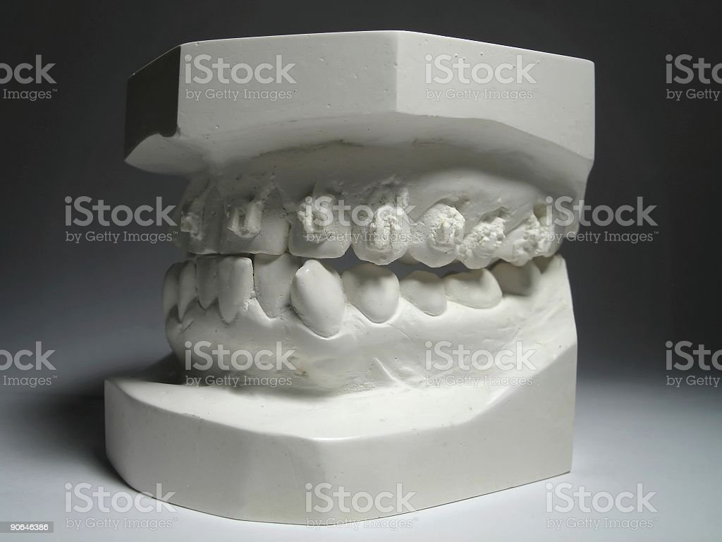 Teeth Plates royalty-free stock photo
