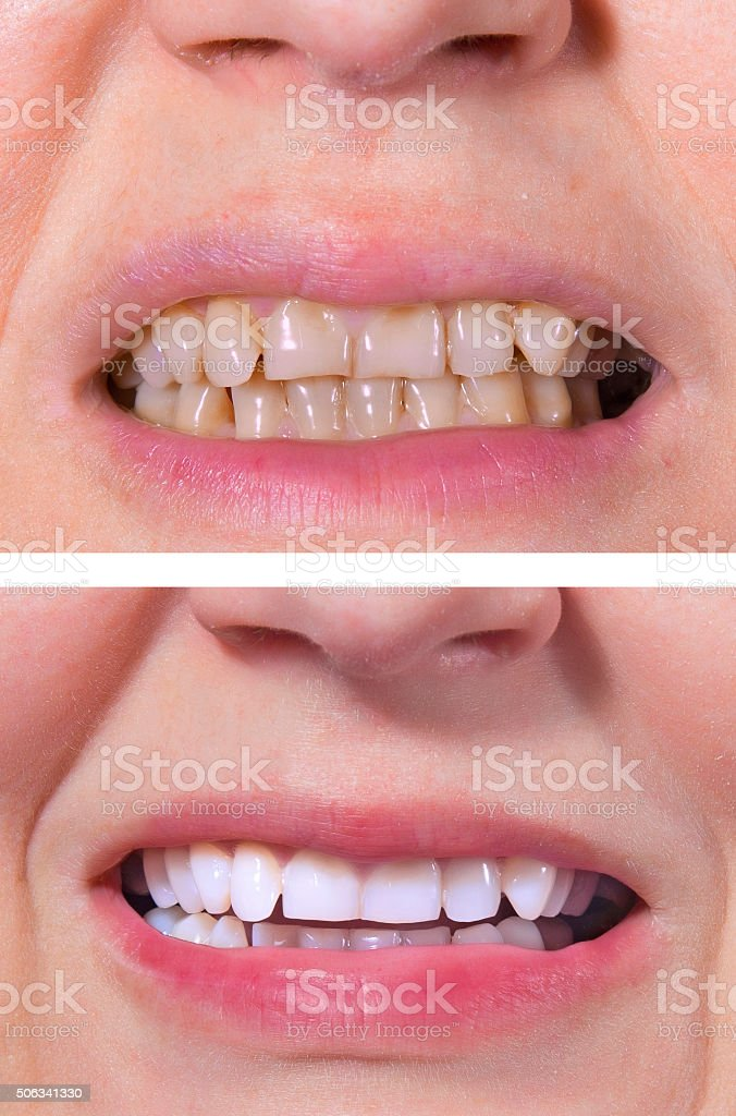 Teeth whitening - BEFORE and AFTER royalty-free stock photo