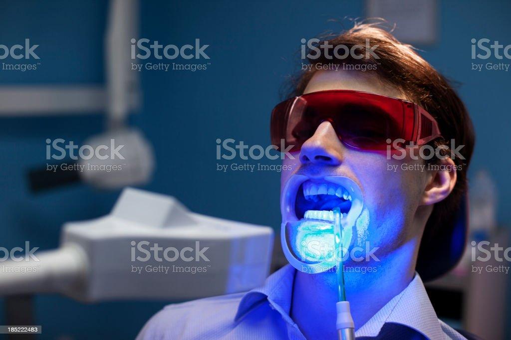 Teeth Whitening Dental Medical Process royalty-free stock photo