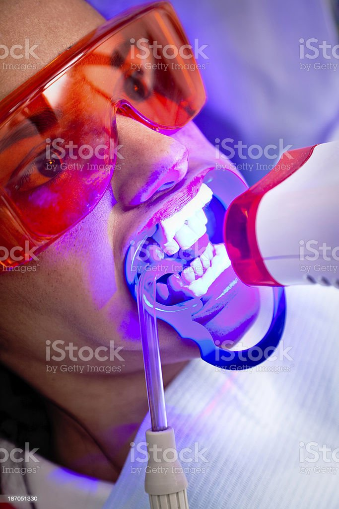 Teeth whitening light treatment royalty-free stock photo