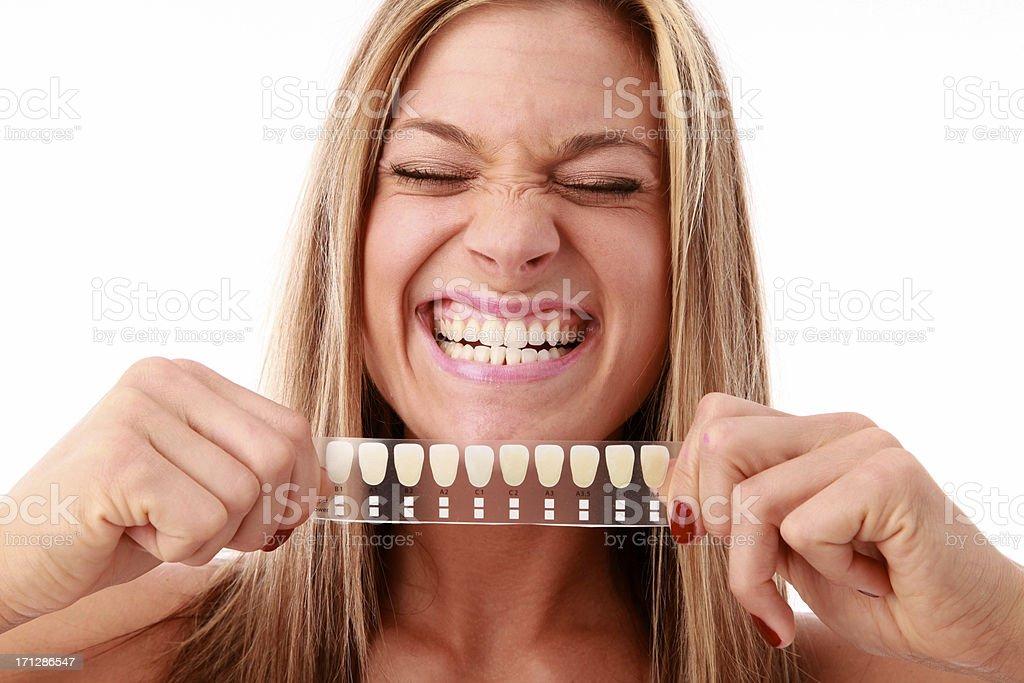 Blanqueamiento dental foto de stock libre de derechos