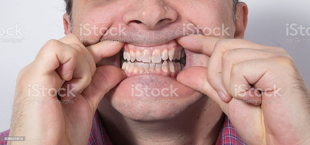 Teeth whitening - STAGE 1 royalty-free stock photo