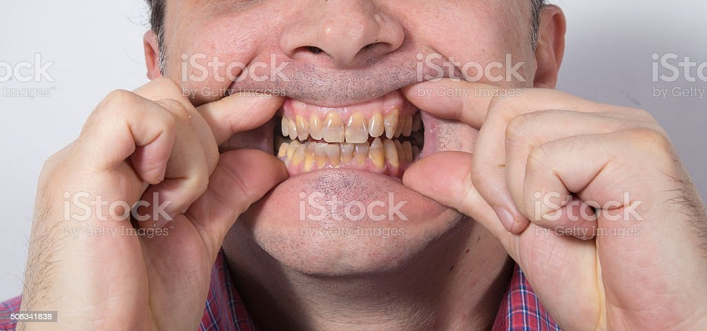 Teeth whitening - STAGE BEFORE CLEANING royalty-free stock photo
