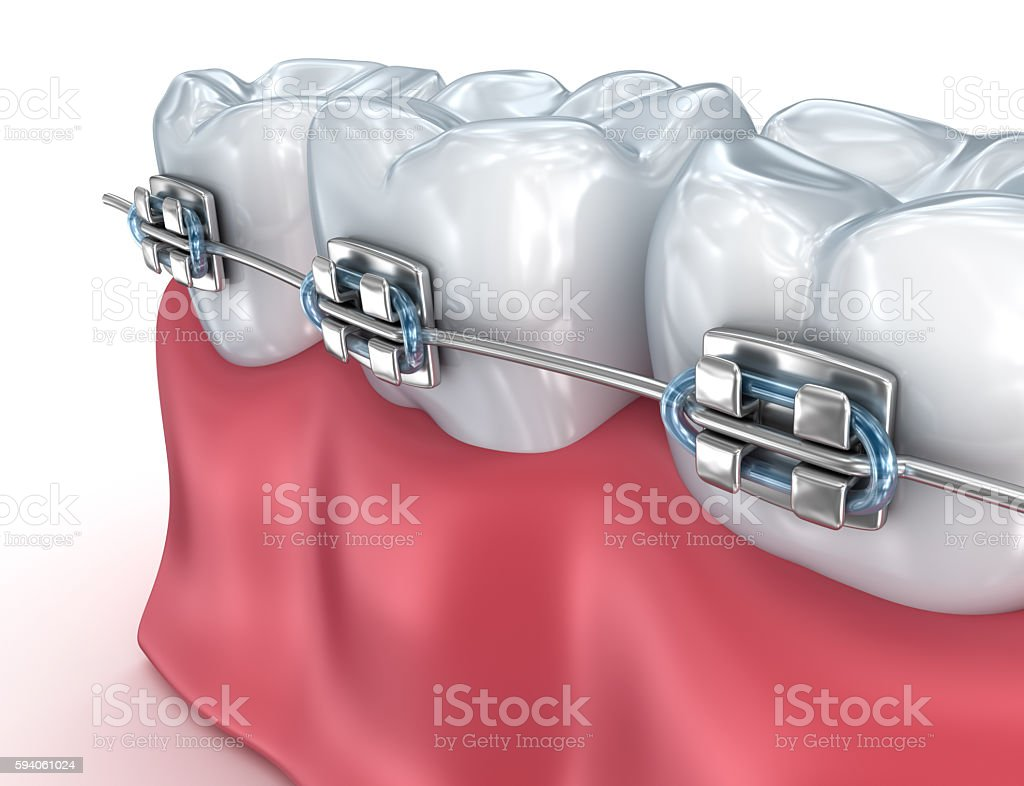 Teeth with braces isolated on white. Medically accurate 3D illustration stock photo