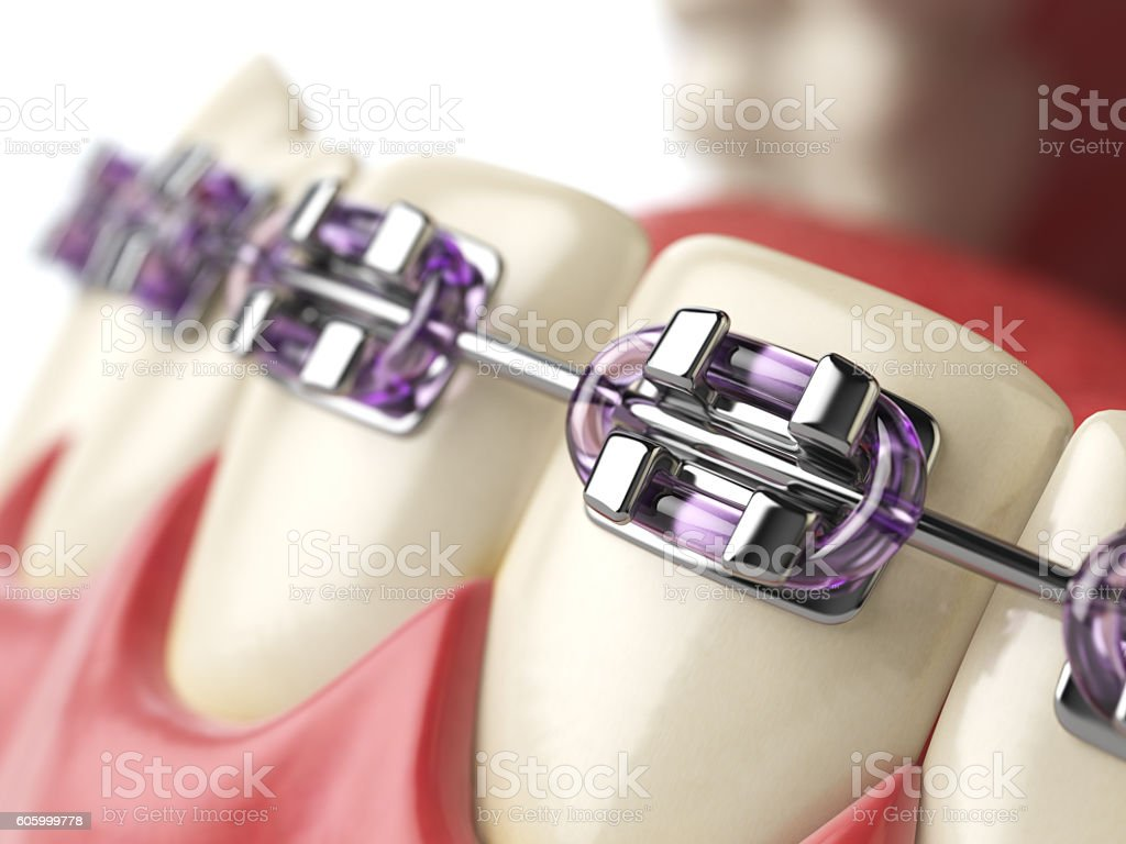 Teeth with braces or brackets in open human mouth. stock photo