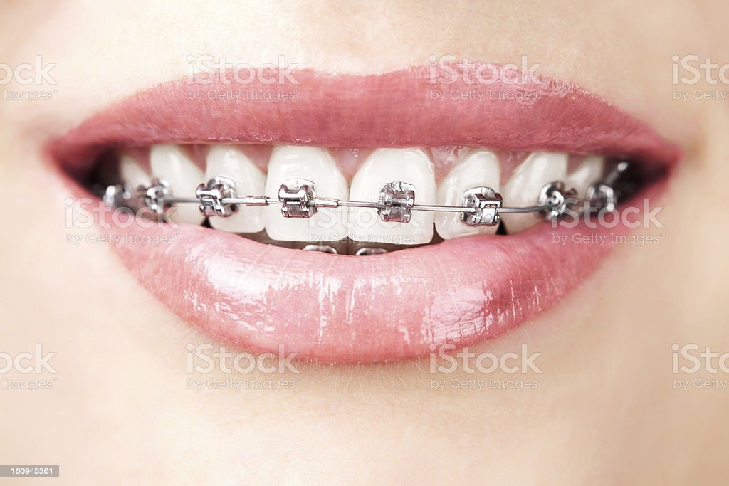 teeth with braces stock photo