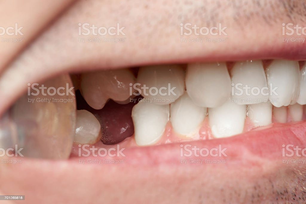 Teeth with gap of missing tooth stock photo
