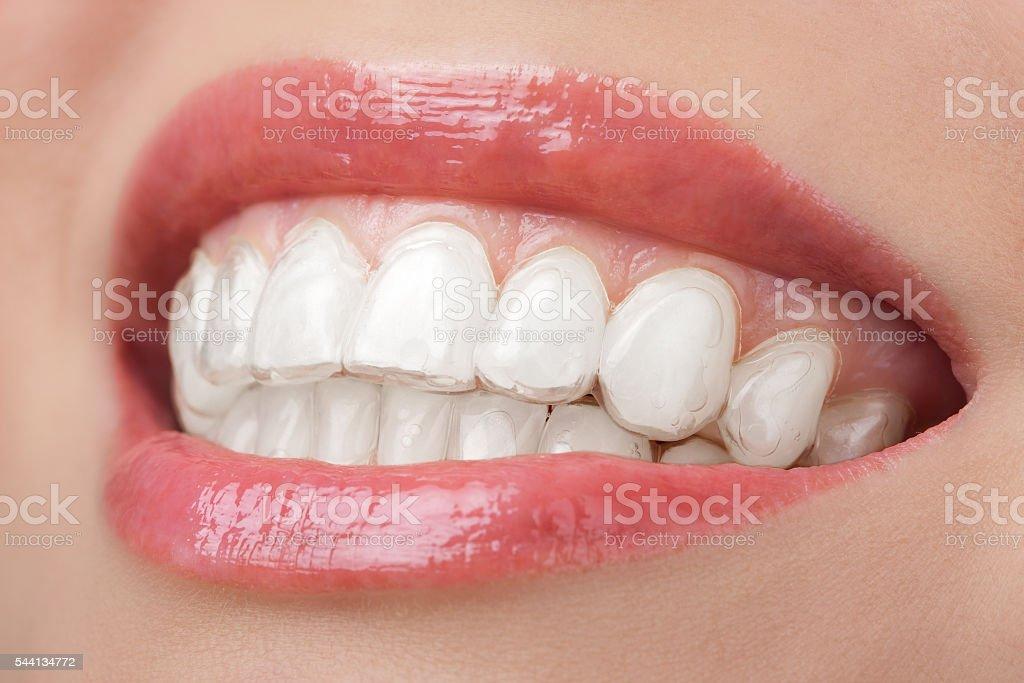 teeth with whitening tray smile dental stock photo