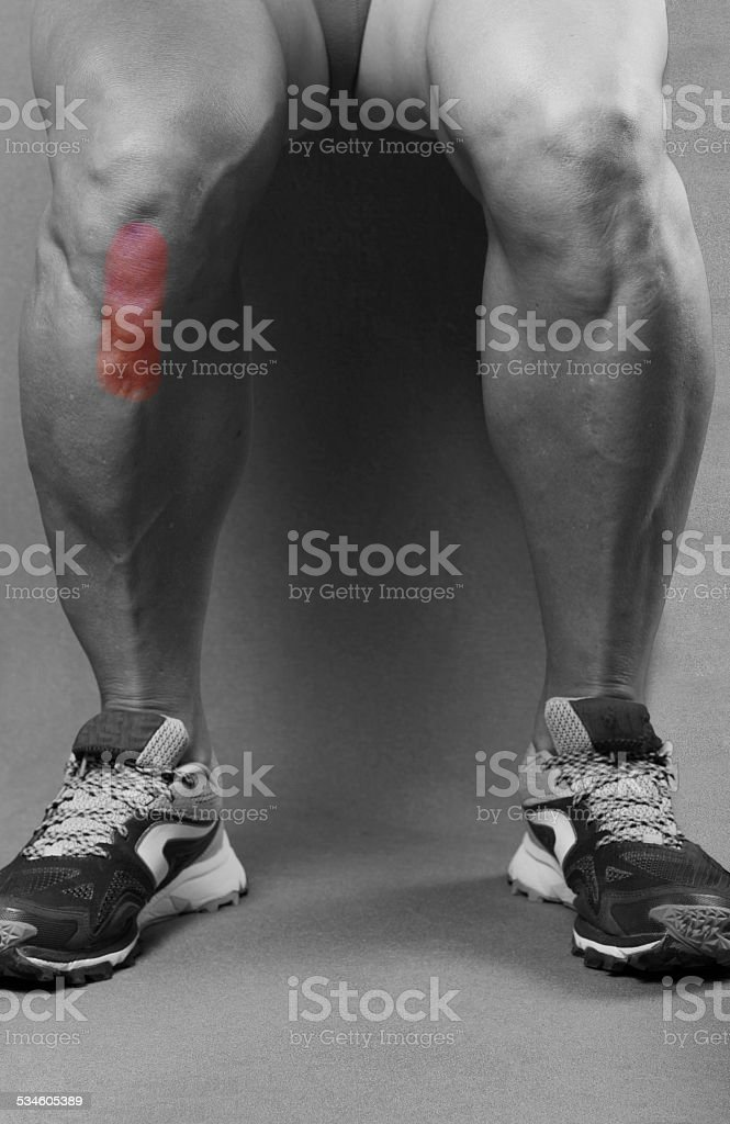 Tendinitis in the patellar tendon stock photo