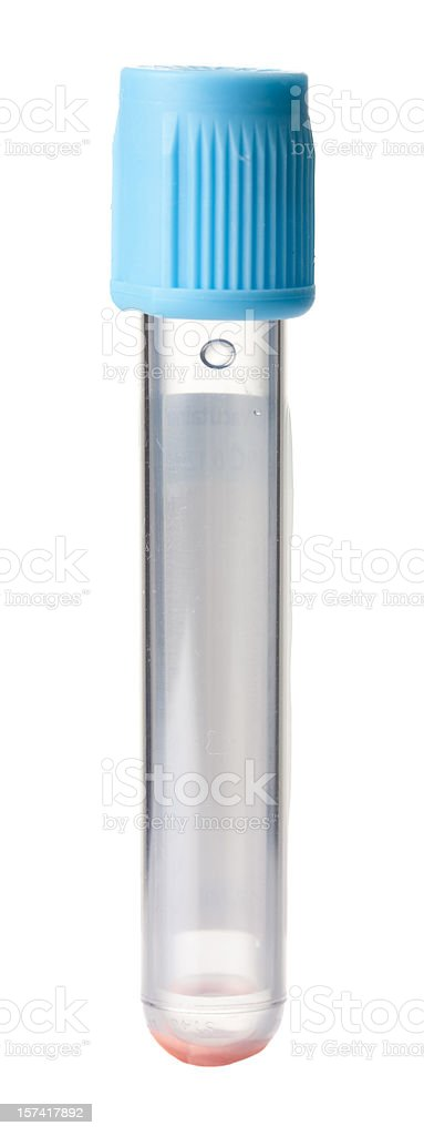 Test tube for blood sample stock photo