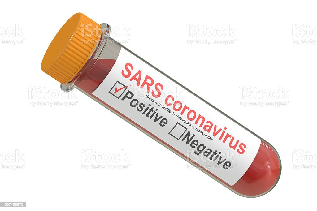 Test tube with blood sample positive SARS coronavirus, 3D render stock photo