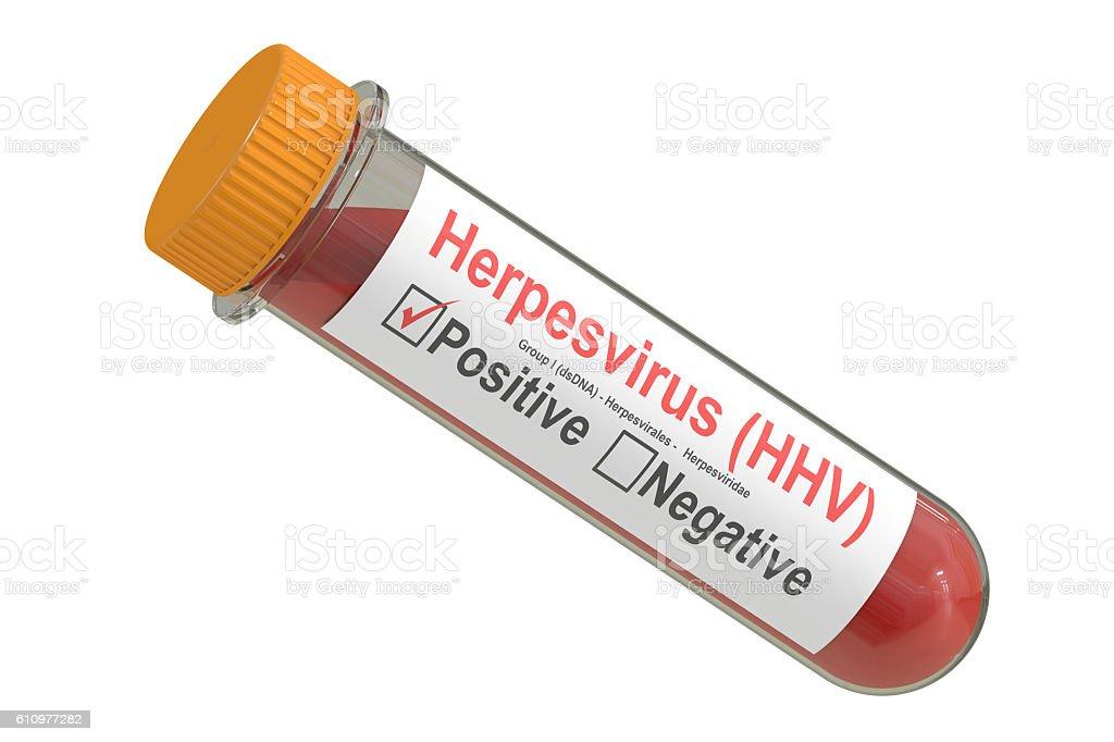 Test tube with blood sample positive with herpesvirus hhv virus, stock photo