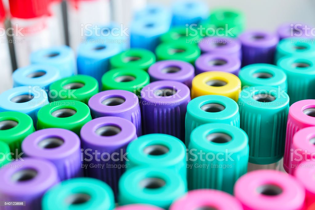 Test tubes for blood. Medical equipment. stock photo