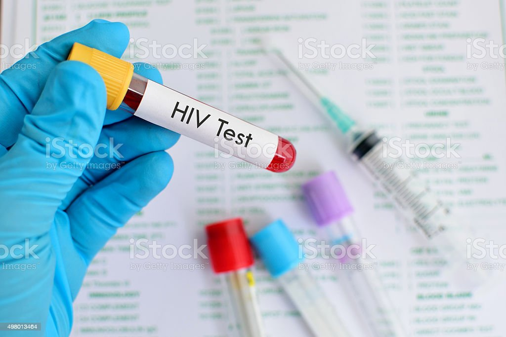 HIV testing stock photo