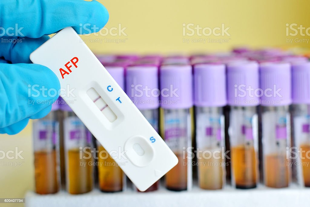 AFP testing stock photo