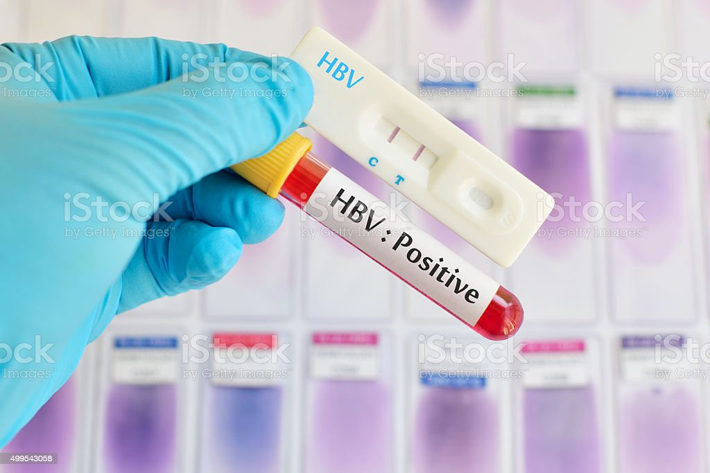 HBV testing positive stock photo