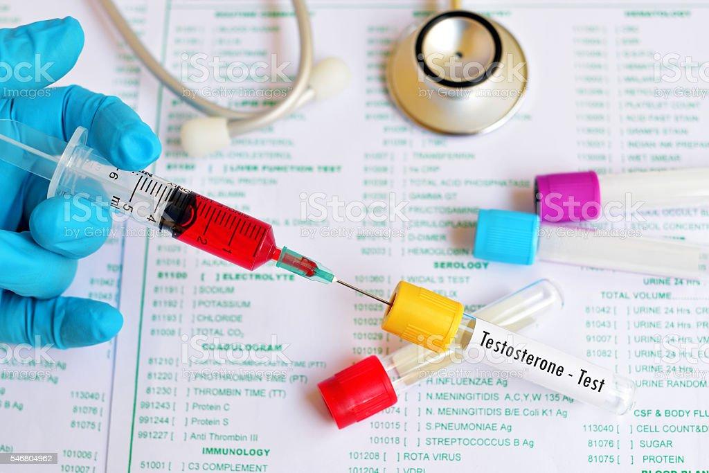 Testosterone test stock photo