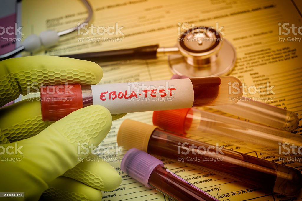 Tests For Research Of Ebola virus stock photo