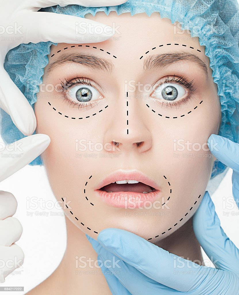 The beautiful woman before plastic surgery operation of cosmetology stock photo