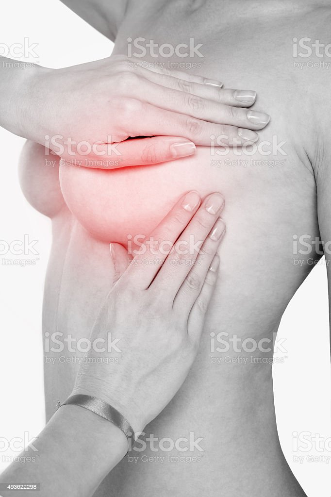The concept of the disease of breast cancer. royalty-free stock photo