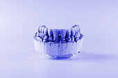 the denture made of ceramics located on plaster model