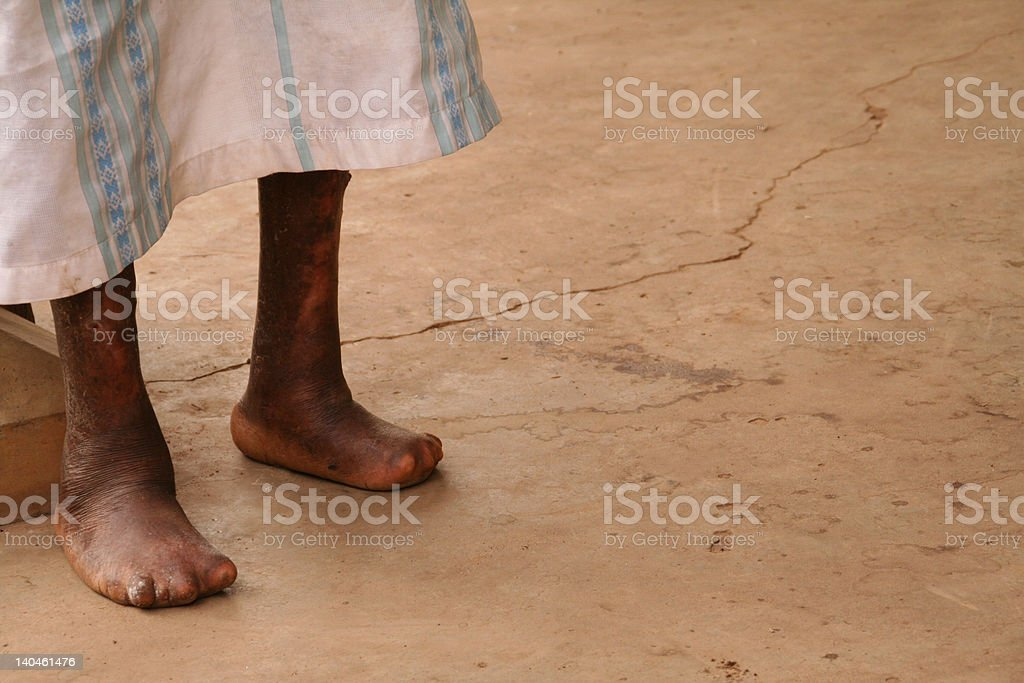 The Feet of a Leper stock photo