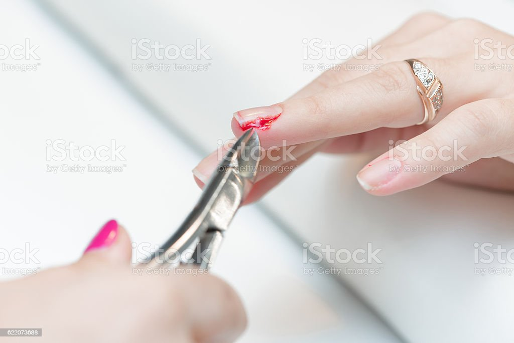 the girl suffered a cut finger on the manicure. stock photo