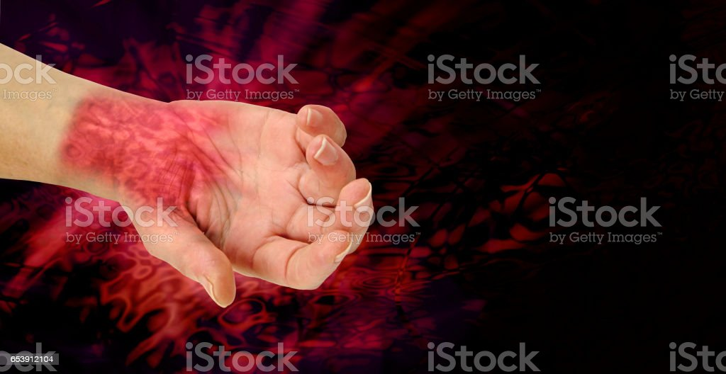 The PAIN of RSI stock photo