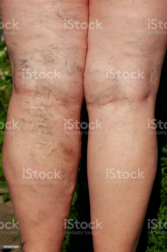 the phlebeurysm on legs stock photo
