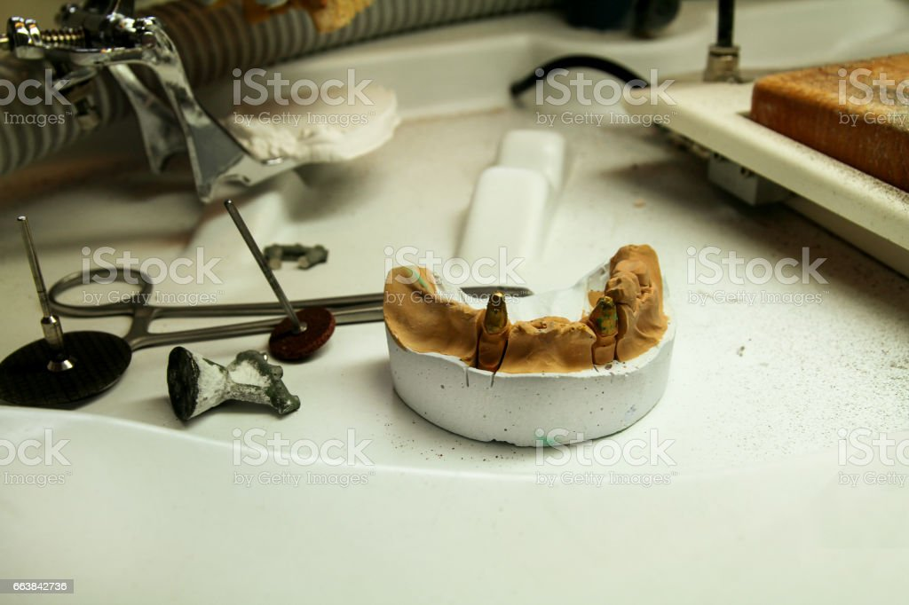 The plaster model of the jaws with tools. Dental prosthesis, dentures, prosthetics work. Dental technician in process of making dentures. The plaster model of the jaws with tools. Stomatology. stock photo