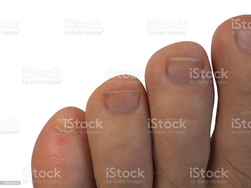 The problem pinky nail feet on a white background stock photo