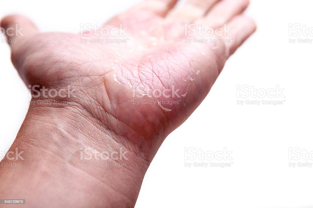 The problem with many people - eczema on hand. Isolated stock photo
