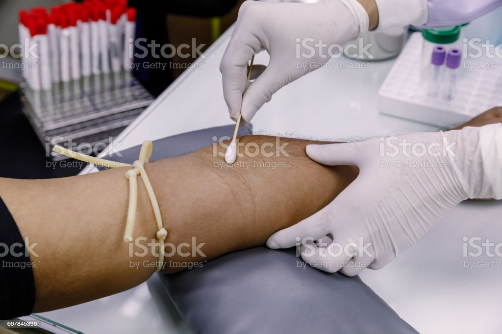 The procedure use needle of Blood collection from the patient's arm... stock photo