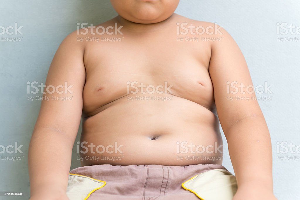 The size of stomach of children with overweight. stock photo