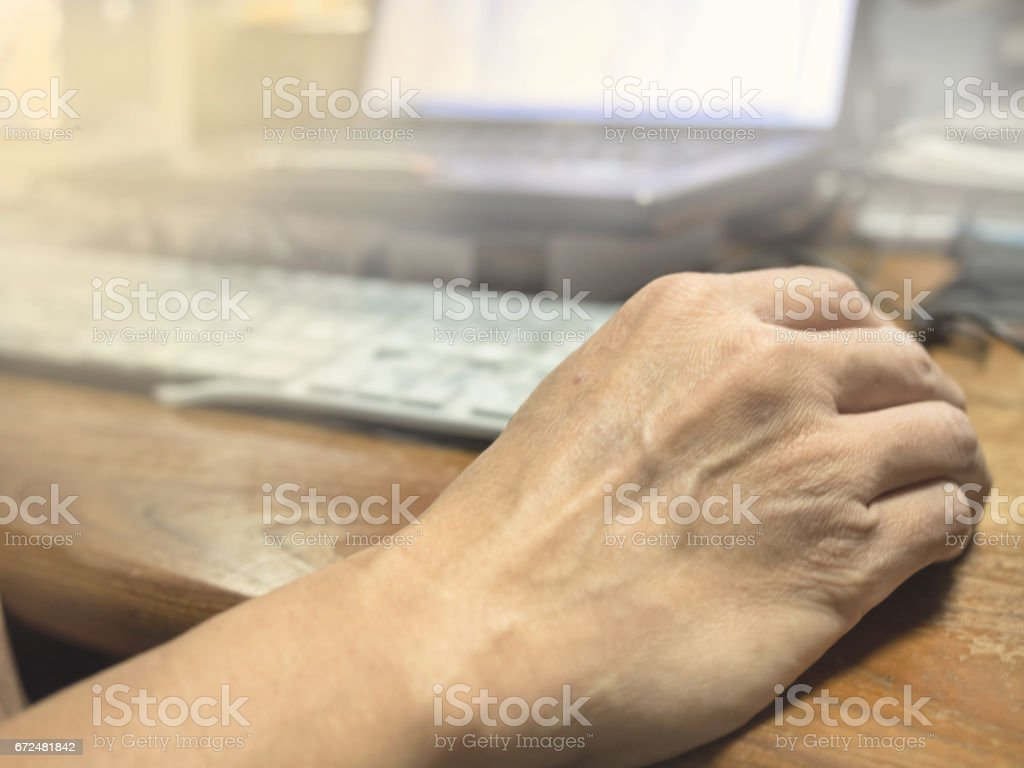 The skin of the hand through hard work. stock photo