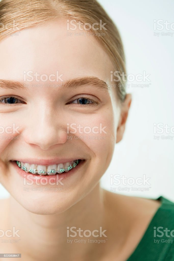 The Smiling Girl with Dental Braces. stock photo