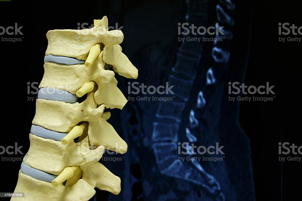 The spine stock photo