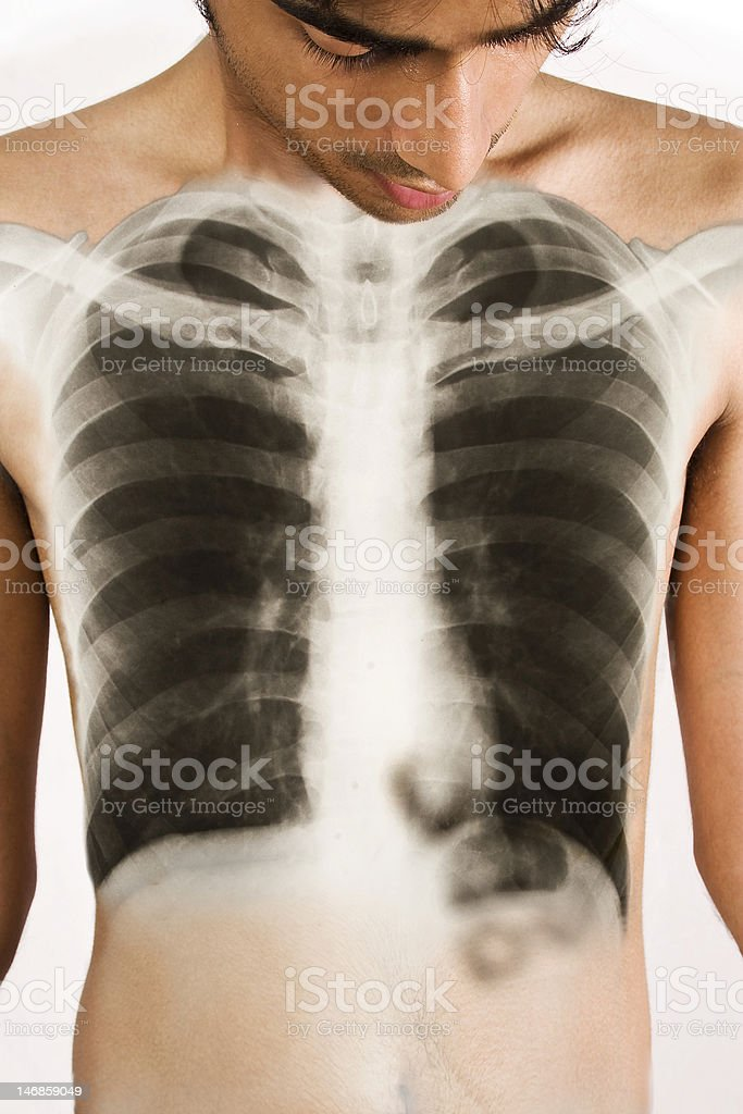 The X-RAY Man royalty-free stock photo