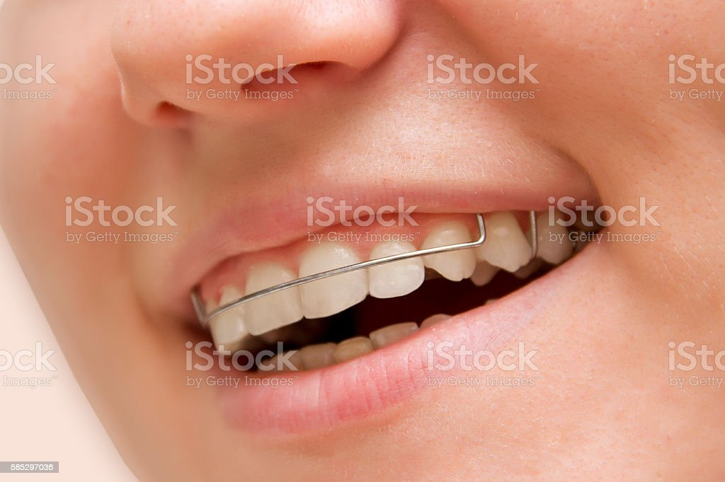 the young girl smiling with braces on teeth stock photo