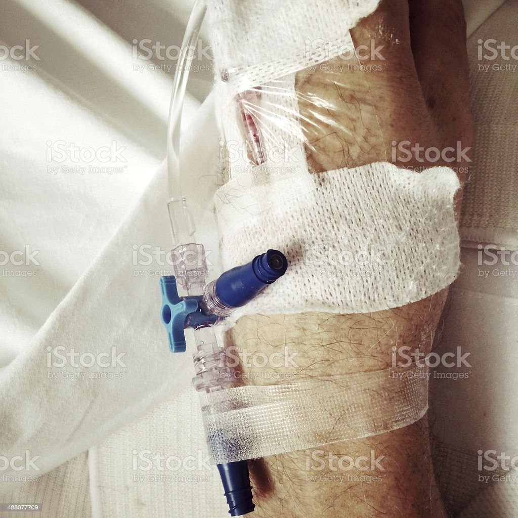 IV therapy stock photo