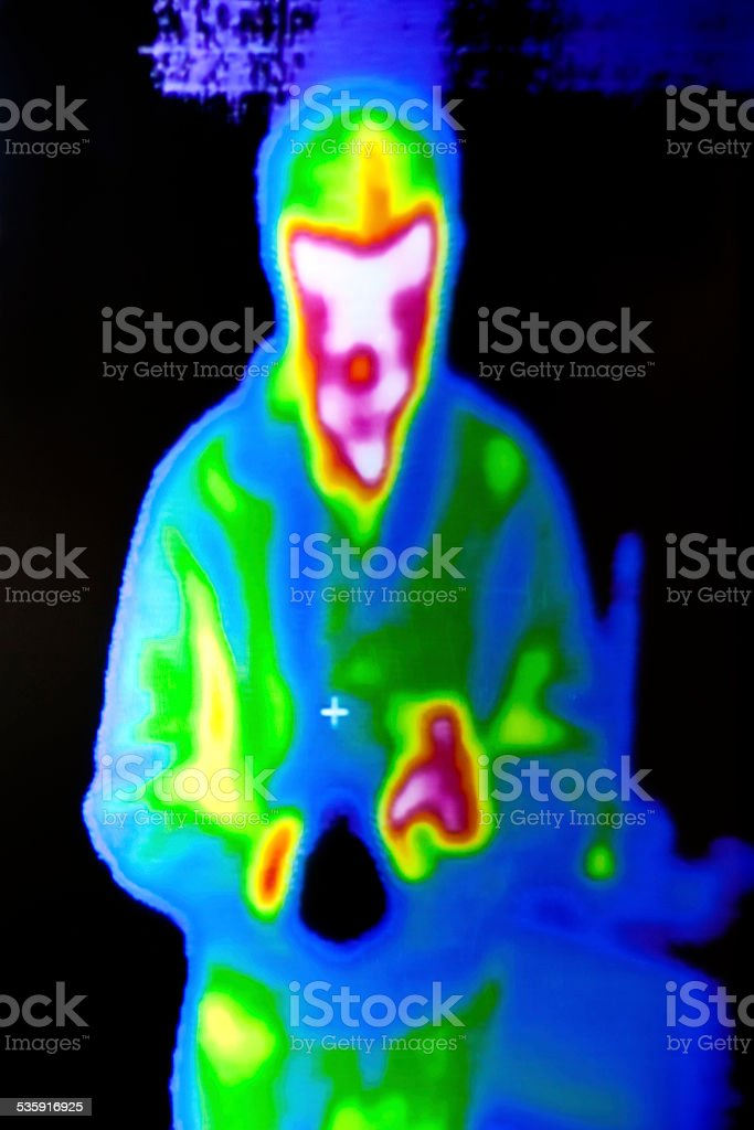 Thermographic areas of a photographer stock photo