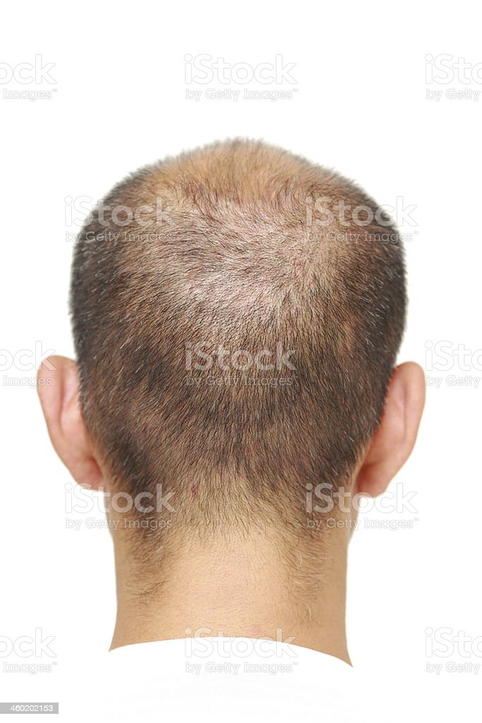 thin hair stock photo