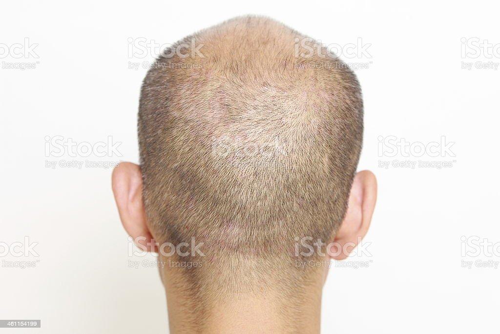 thin hair stock photo