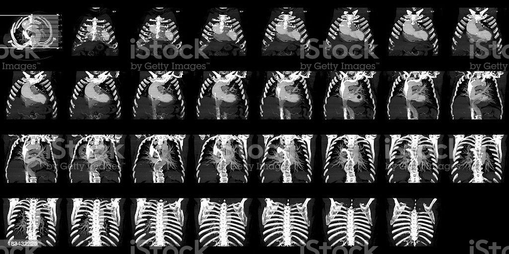 Thoracoabdominal CT stock photo